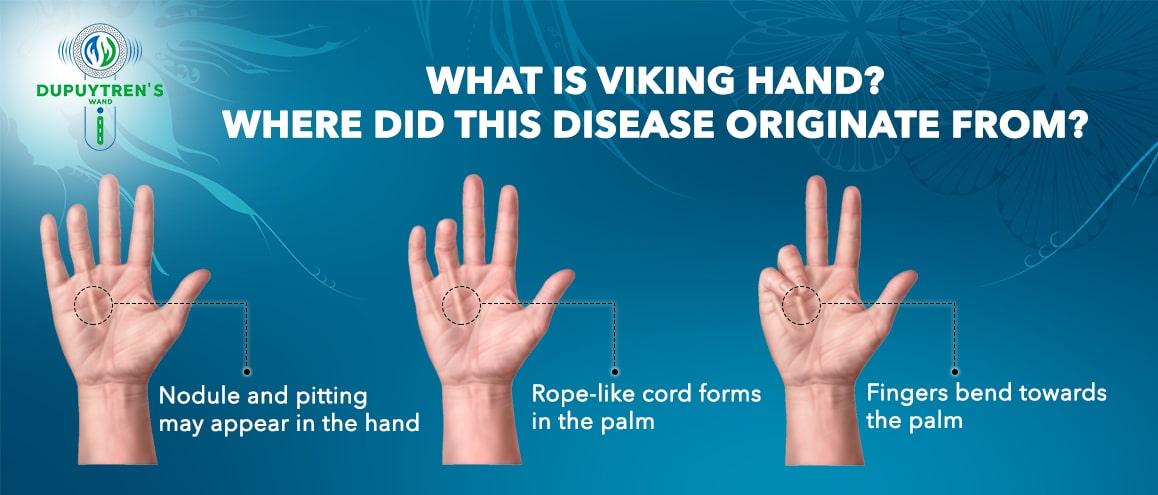 Viking hand disease