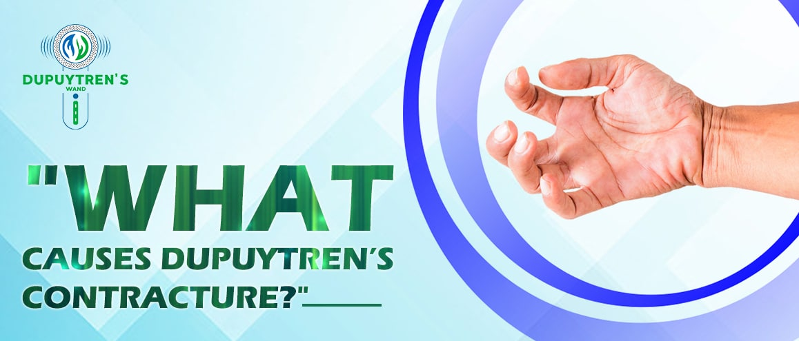 Dupuytren's contracture causes