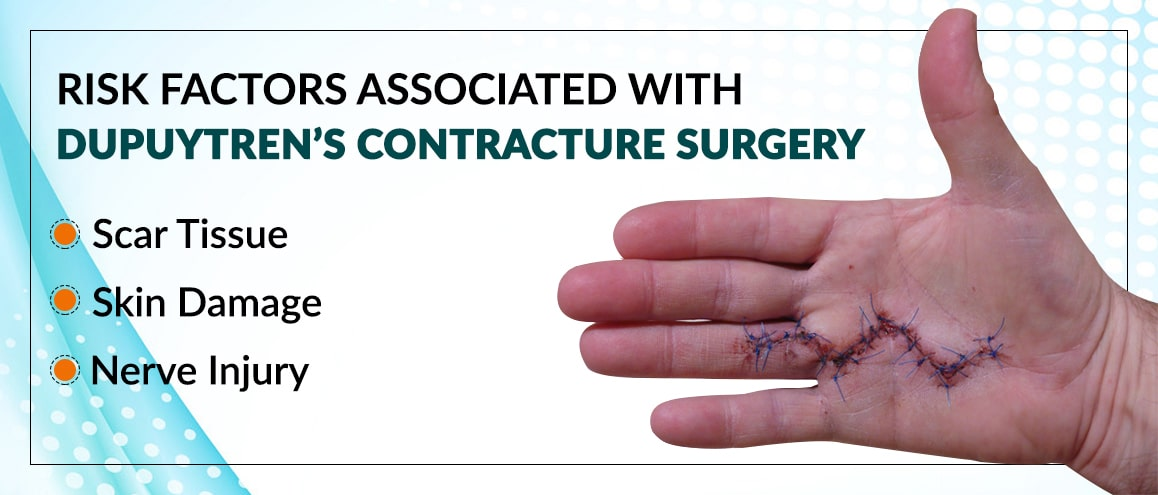 Dupuytren's Contracture surgery