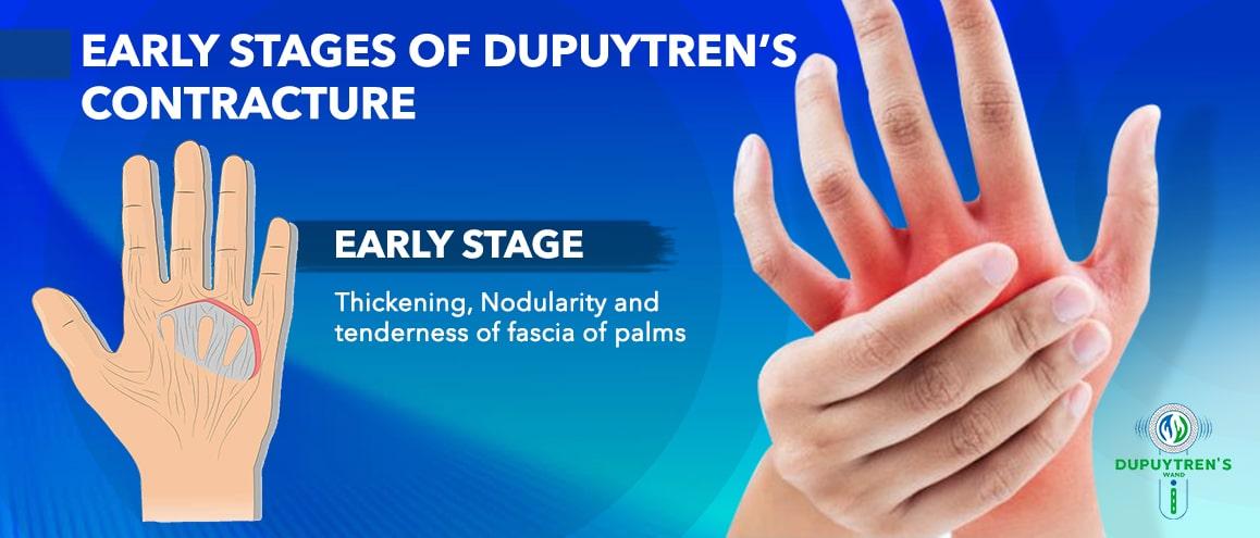 Dupuytren's Contracture Treatment