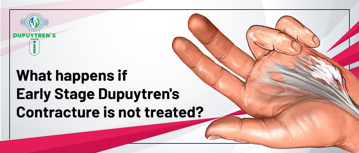 Untreated Dupuytren's Contracture