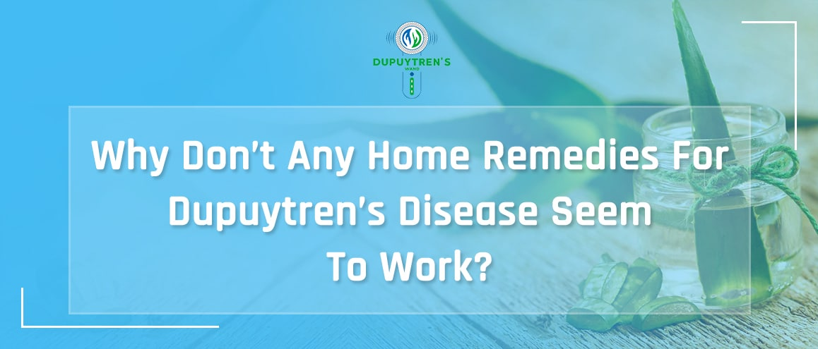 home remedies for Dupuytren's Disease