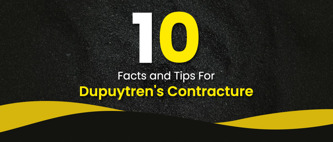 Dupuytren's Contracture Facts