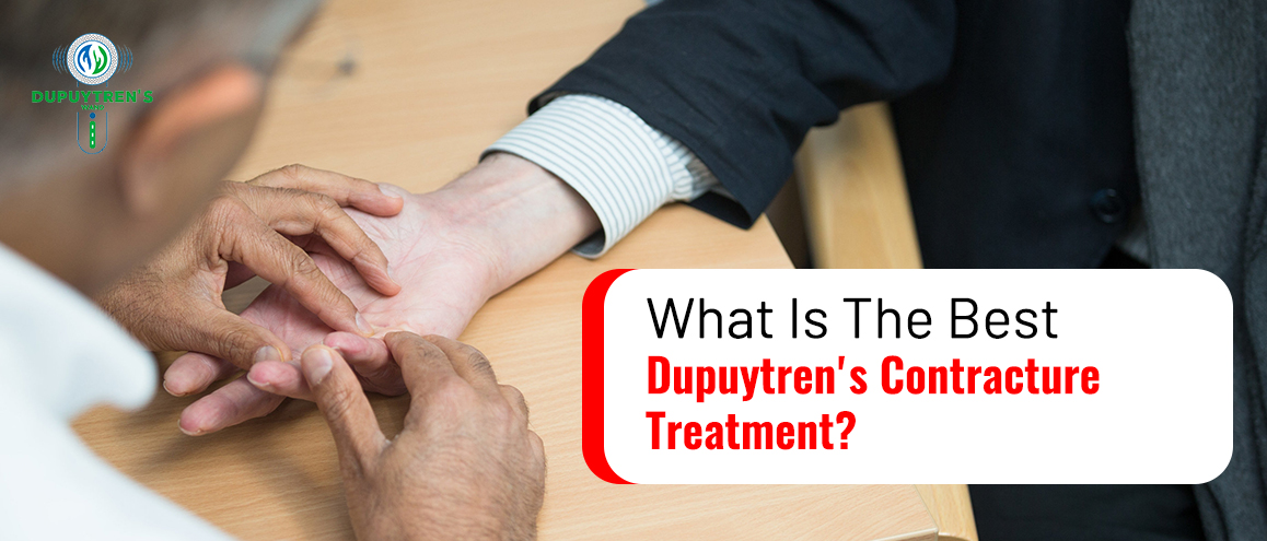 Treatment For Dupuytren's Contracture